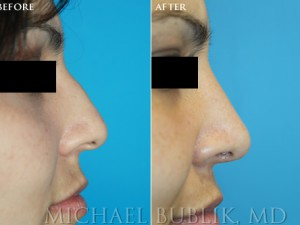 Clinical History: Healthy female with nasal hump, and wide nasal tip Procedures: Rhinoplasty with hump reduction (full osteotomies), and tip-plasty using dome unit sutures. Graft Types: Columellar strut.